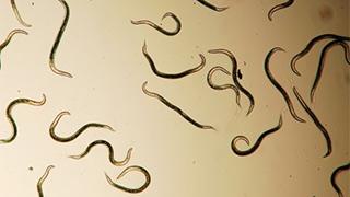 80% dân số Việt Nam bị nhiễm ký sinh trùng mà không hề hay biết!